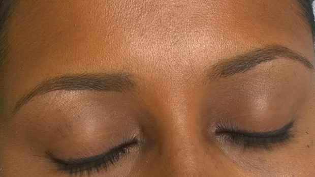 Strobing  - brows and forehead close-up